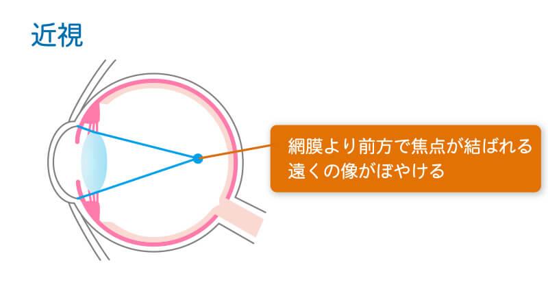 近視の症状図