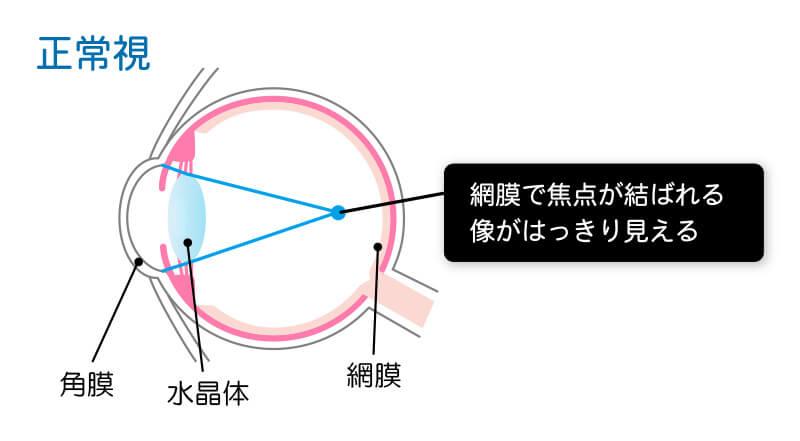 正常視の図