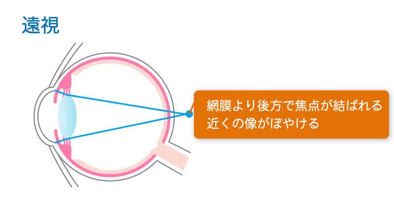 遠視の症状図