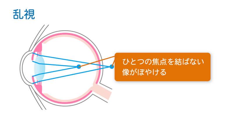 乱視の症状図