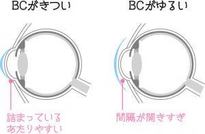 ベースカーブの図